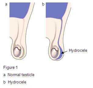 Hydrocele-1