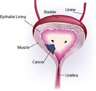 bladder_cancer 1